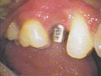 before-dental-implants