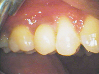 after-dental-implants