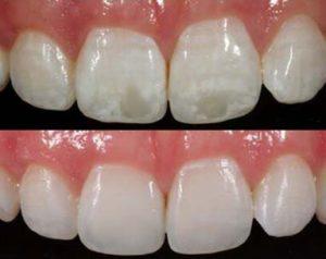 White spot on teeth