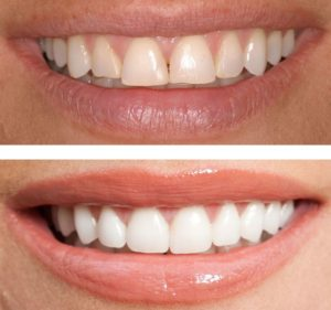Tooth Bonding in South West London - Preventive Dental