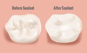 dental-sealant